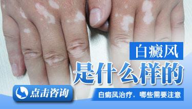 手背白斑初期症状图片